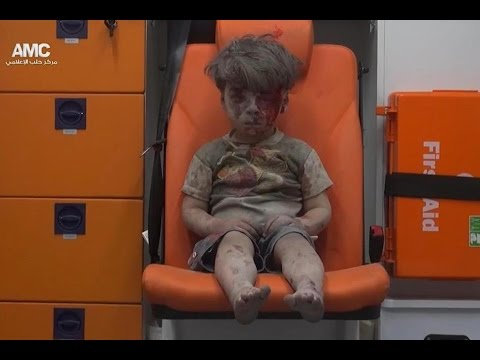 HAUNTING Image Of Syrian Boy Rescued From Aleppo RUBBLE!!