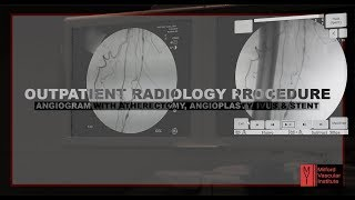 INTERVENTIONAL RADIOLOGY PROCEDURE | ANGIOGRAM | MVI OBL - Paul Davis, M.D. & David Esposito, M.D.