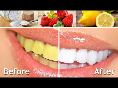 Homemade teeth whitening remedy works 100 youtube homemade teeth whitening remedy works 100 solutioingenieria Image collections