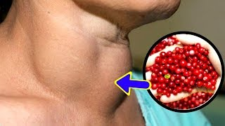 Early Signs And Symptoms Of Thyroid Problems | Never Ignore These!!