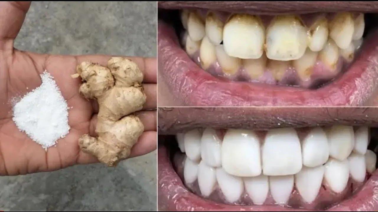 Download In nur 2 Minuten weiße Zähne - Weiß und Glänzend wie eine Perle mit diesem Rezept!