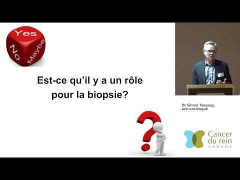 2016 Session d'information à Montréal - Dr Simon Tanguay, uro-oncologue