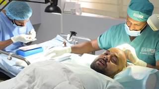 Pubudu Chaturanga DHI Hair Transplant