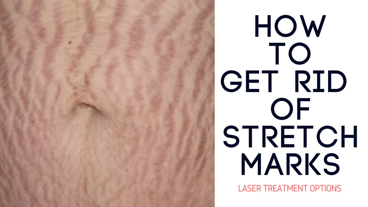 How To Get Rid Of Stretch Marks   Laser Treatment Options ...