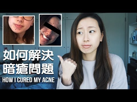 How I cured my acne | 我點解決不停生暗瘡嘅問題? (零底妝+ 多相)