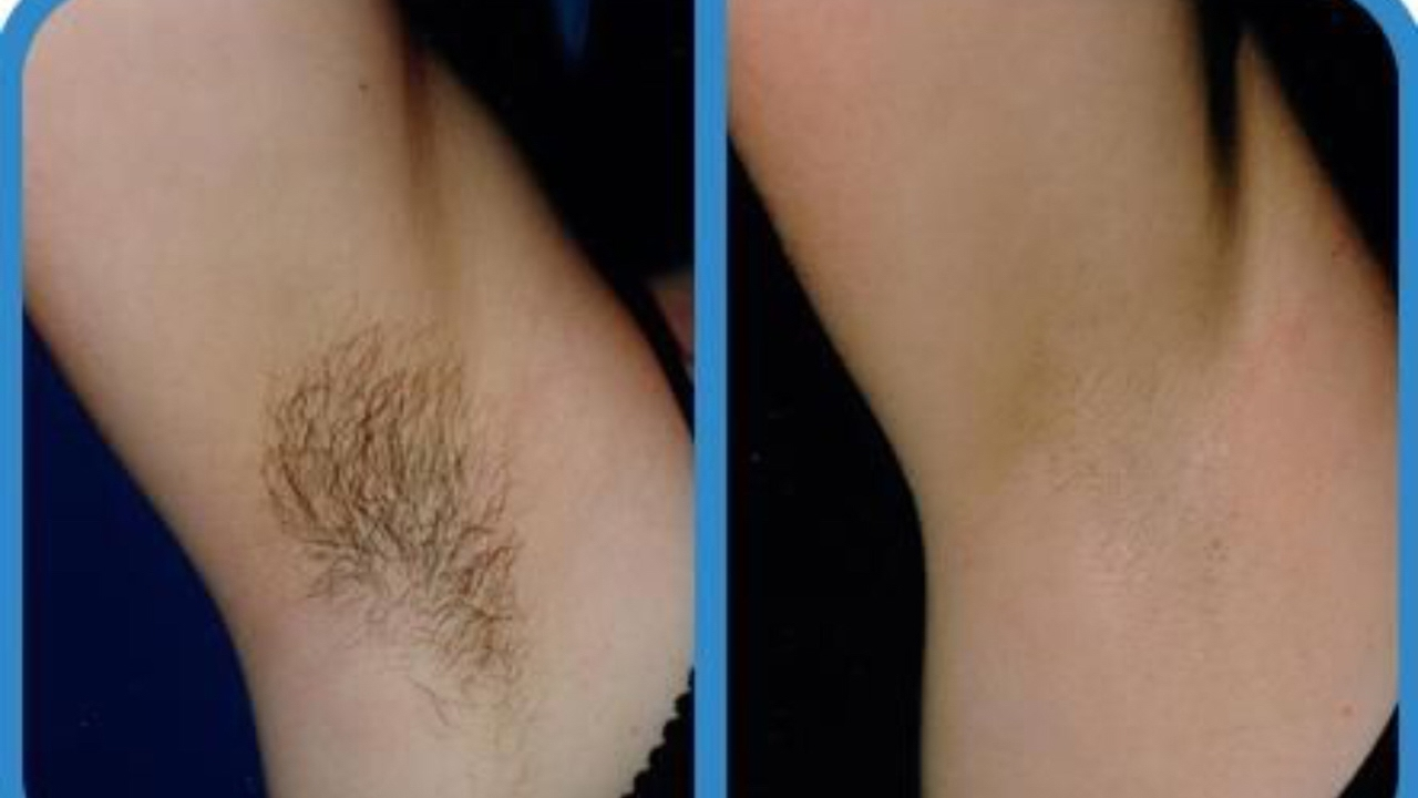 How To Remove Hair Without Waxing Naturally
