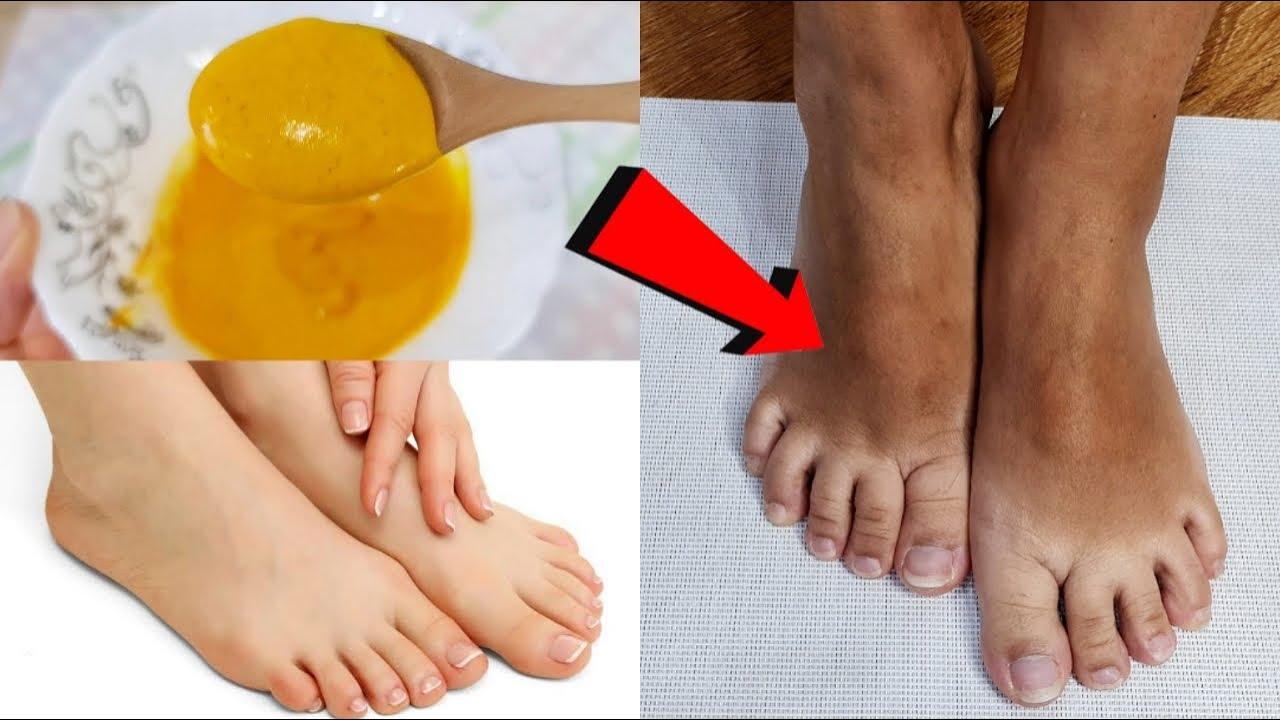 เท้าดำแดด เท้าดำคล้ำ ก็ขาวใสได้ ด้วยสูตรโบราณ ขัดเท้าให้ขาว เรียบเนียนนุ่ม น่าสัมผัส l สรรหามาทำ