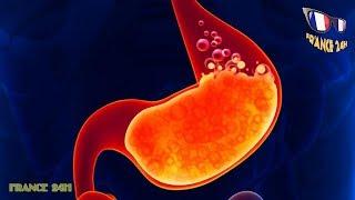 Cancer de l'estomac : tout ce que vous devez savoir
