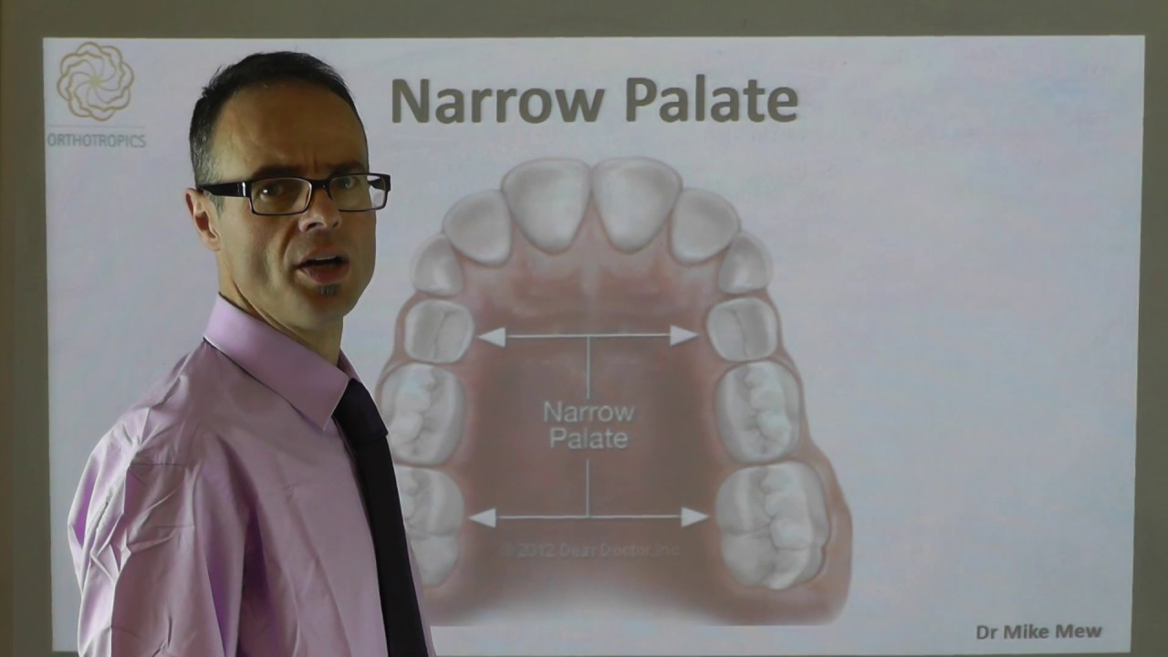 A Narrow Palate By Dr Mike Mew