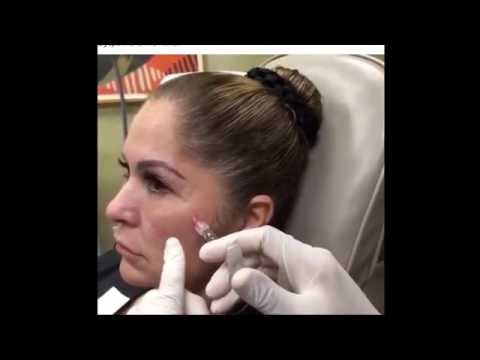 Instructional Botox & Filler Video for advanced techniques w cannula. Non Surgical, liquid facelift
