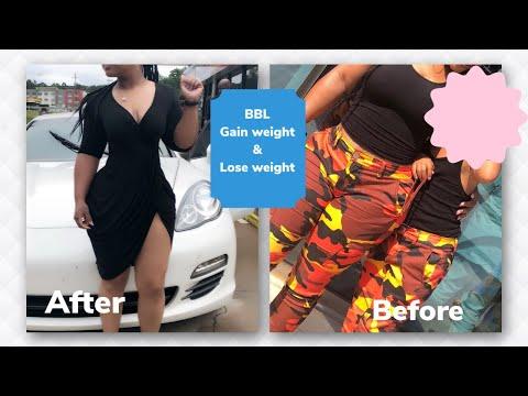 pierdeți în greutate pentru bbl Pierderea de grăsime yohimbină pubmedă