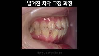 치아 교정 치료 전후 사진 #치아교정 #교정치료 #벌어…