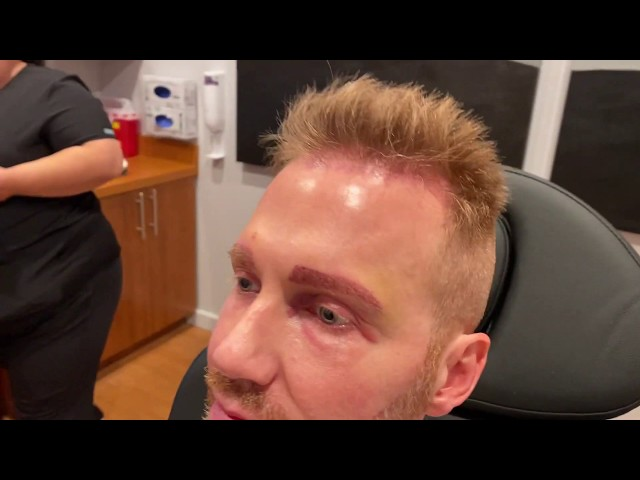 Dallas FUE Hairline, FUE Eyebrow, and Beard to Beard FUE Hair Transplant Close-Up One Day After