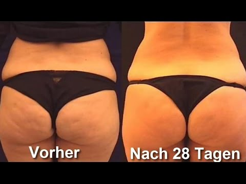 was tun gegen cellulite wie man cellulite bek mpfen und besiegen kann youtube. Black Bedroom Furniture Sets. Home Design Ideas