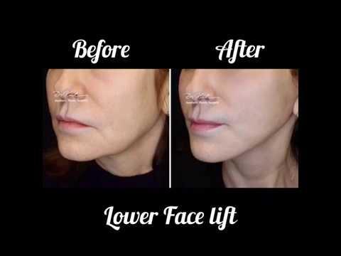 Alt Yüz Germe / Lower Face Lift