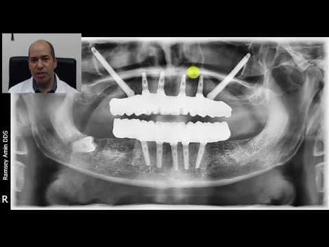 Long vs Short Dental Implants