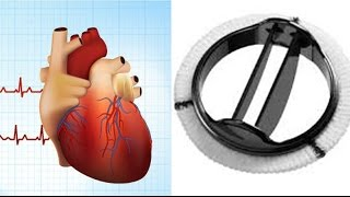 Will Mitral Valve Repair Or Replacement Fix My Atrial Fibrillation