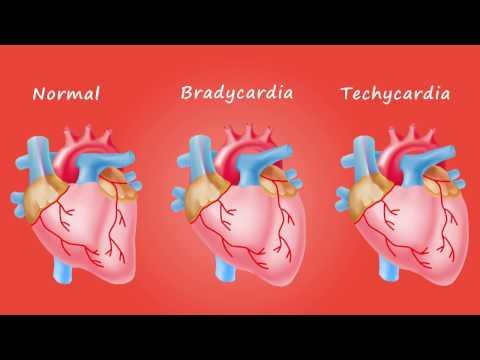 Bradycardia Tachycardia Heart Condition Graphic Illustration