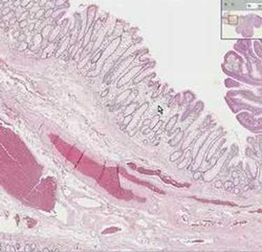 adenoma prostatico khang