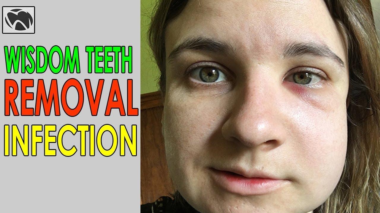 Wisdom Teeth Removal INFECTION | Wisdom Teeth