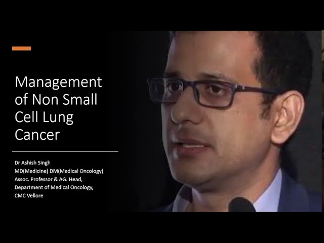 Management of Non Small Cell Lung Cancer- Dr Ashish Singh