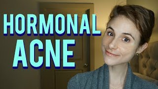 Hormonal acne| Dr Dray Q&A