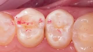 Лечение кариеса зуба | постановка пломбы на зуб | стоматологическое лечение под микроскопом