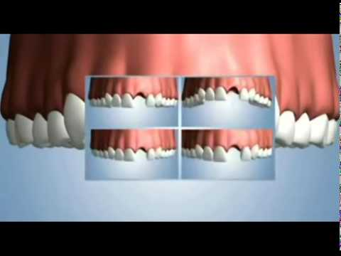 """Front Tooth Replacement Implant"" Naples Dental Studio (239)262-4595"