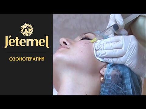 Озонотерапия при кожных заболеваниях