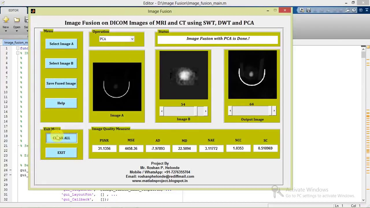 Image Fusion on DICOM Images Using SWT, DWT & PCA Matlab Project with  Source Code