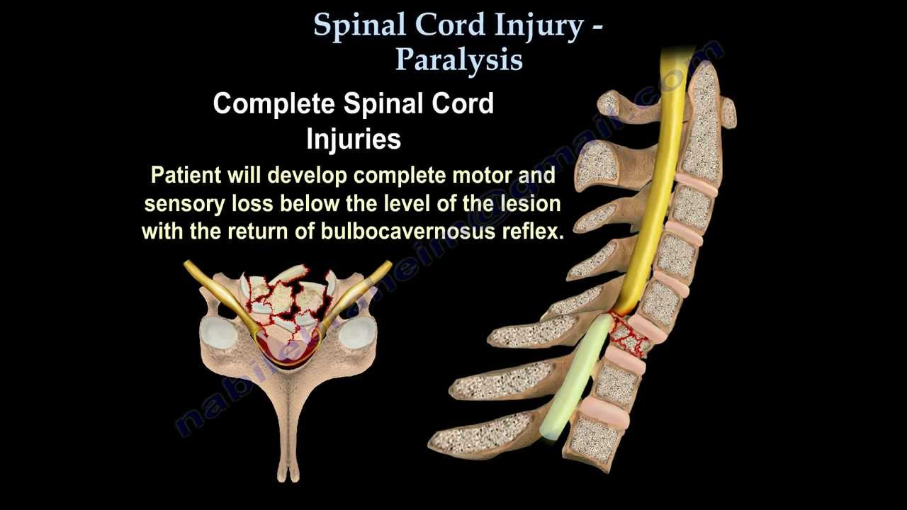 Spinal cord injury paralysis everything you need to know dr spinal cord injury paralysis everything you need to know dr nabil ebraheim youtube sciox Images