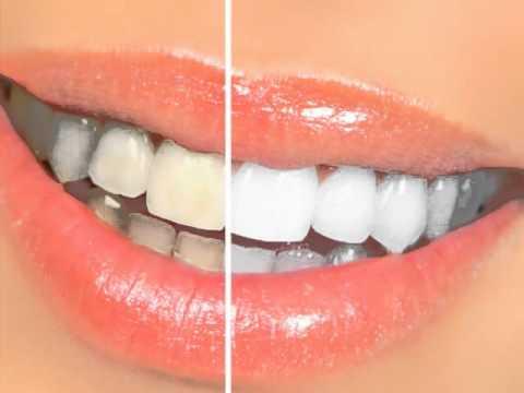 Dr. Nina Madavi, DDS BDS - Dentist Santa Barbara, CA