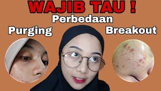 PERBEDAAN PURGING DAN BREAKOUT HARUS TAU !!! | Dellayustra