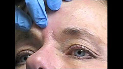 BOTOX® Cosmetic for Frown Lines