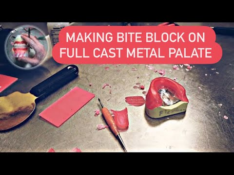 How to make wax rims or bite blocks on full cast metal palate.