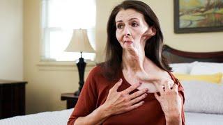 Fumare poco non fa male? I danni delle sigarette sul volto di Christine