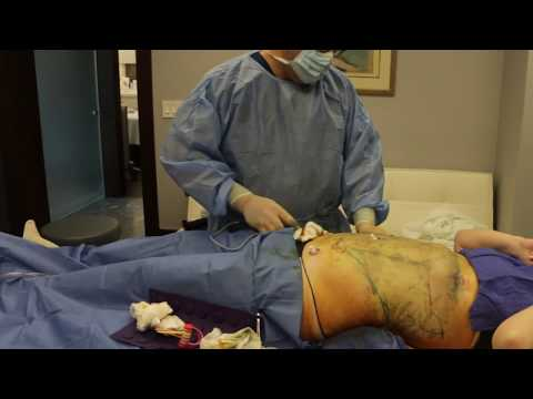 High Definition Liposuction (In-Office) in New Jersey