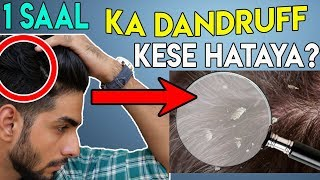 How to remove dandruff under ₹350 for college boys? Dandruff removal at home