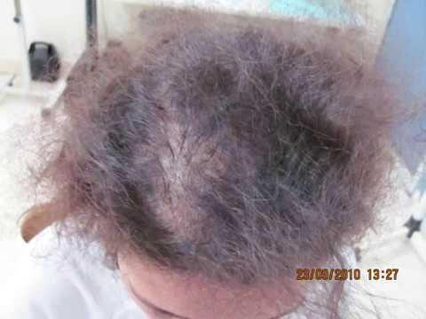 Chute de cheveux frontale chez la femme