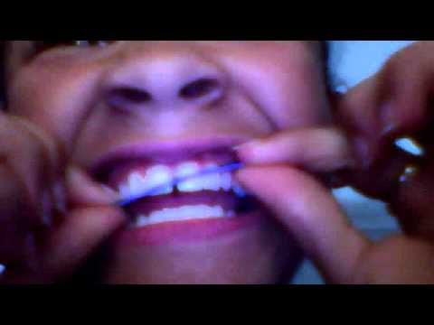 how to make fake braces and retainers