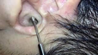 耳かきくらぶ【その38 】- Ear cleaning,Ear wax removal How to clean ear wax Part38.  - 귀청소38 - 귀파기38   - 掏耳朵38