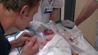 De bevalling van Mariëlle komt toch met 28 weken op gang | Kleine baby's, grote zorg