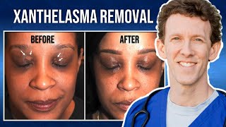 What Is The Definition Of Xanthelasma Xanthoma.