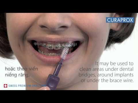 Bàn chải kẽ răng dành cho niềng răng