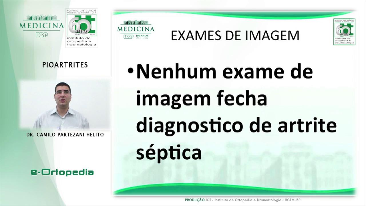 pioartrites dr camilo partezani helito youtube5613 Hospital Das Clinicas Exames #16
