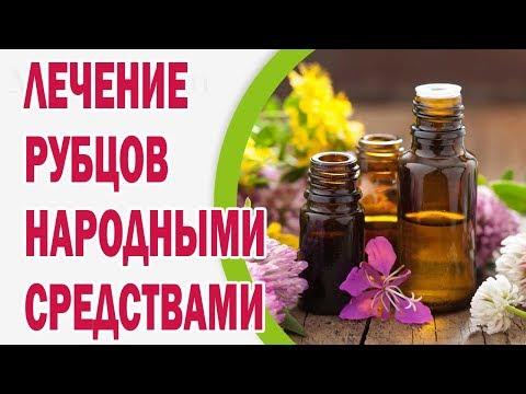 Лечение рубцов народными средствами