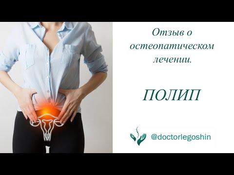 Полип в матке. Остеопатическое лечение. Отзыв