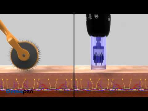 MicroNeedling Procedure Video by Dermapen®