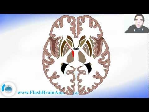 Horizontal Slice Of the Brain