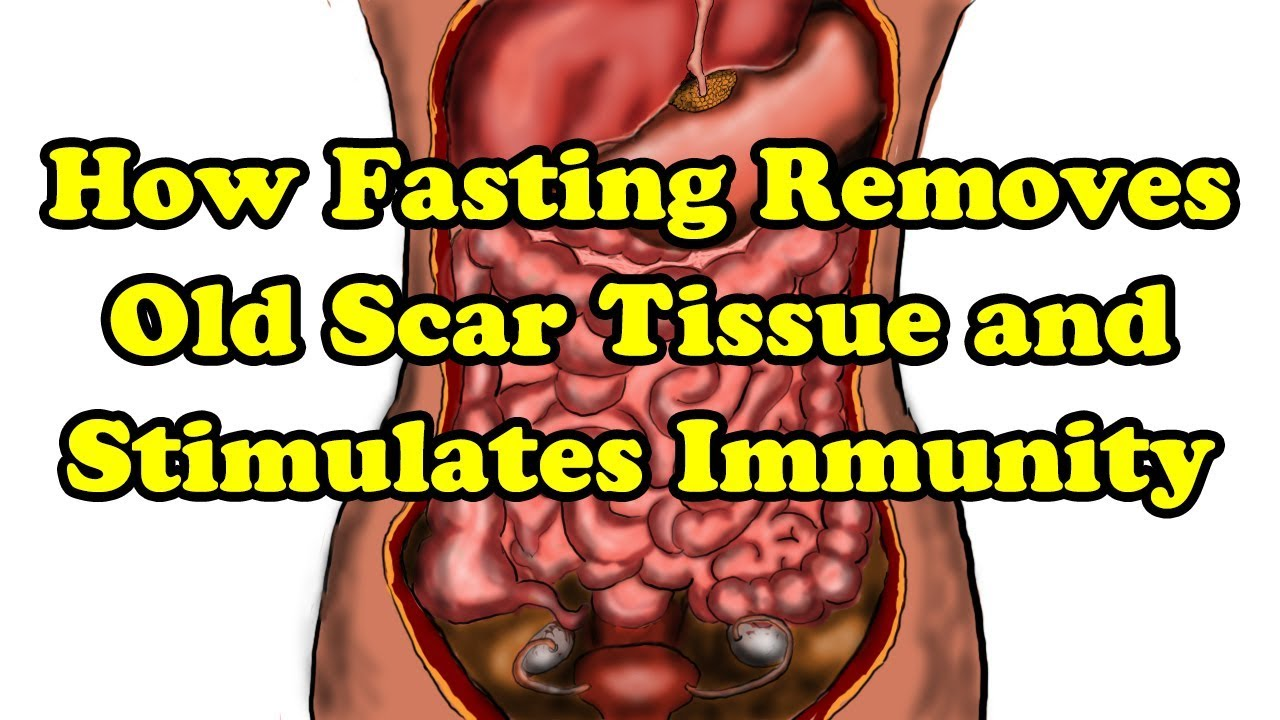 Fasting Benefits - How Fasting can remove old scar tissue